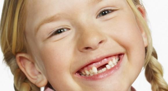 Wow, Ini Dia Trick Untuk Mengatasi Gigi Yang Ompong
