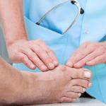 Hubungan Penyakit Asam Urat dengan Penyakit Lainnya
